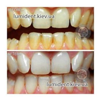 чистка зубов киев