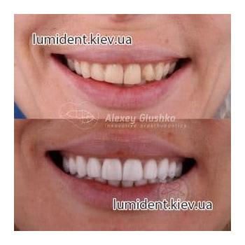 Виниры протезирование зубов Люми-Дент