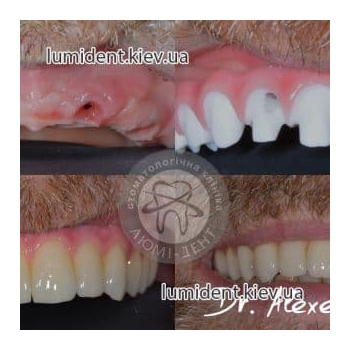 Протезирование зубов до после Люми-Дент