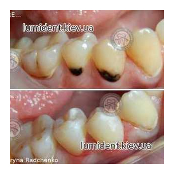 teeth restoration