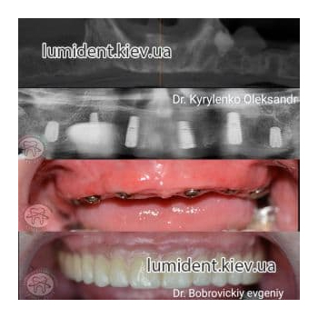 Зубная имплантация имплантанты зубов фото Киев Люми-Дент