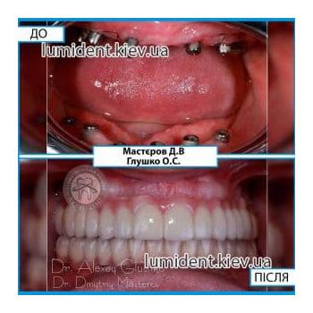 Имплантация если нет зубов на челюстях Киев Люми-Дент