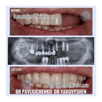 До и после протезирования зубов Люми-Дент