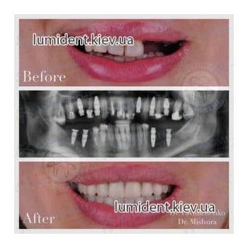 Протезирование зубов до после фото Люмидент