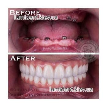 Протезирование зубов до после фото Люми-Дент