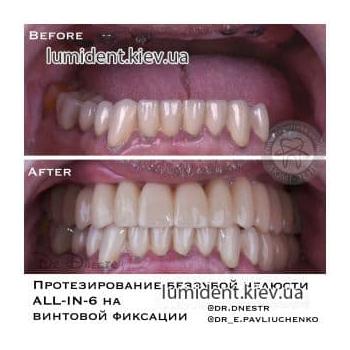 Имплантация зубов фото импланты фото до и после Люми-Дент