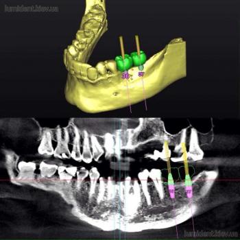 Планирование имплантации зубов
