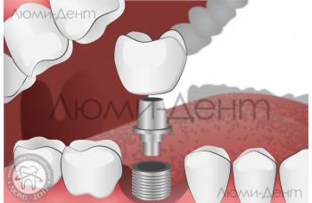 Акція на імплантацію зубів! Ціни на імпланти знижено!