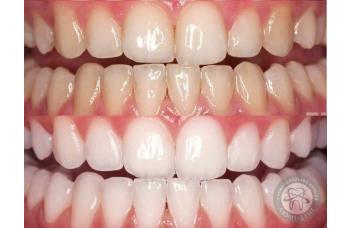 Акція на відбілювання зубів! Тільки до 30 листопада!