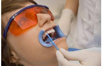Акція на чистку зубів в Києві