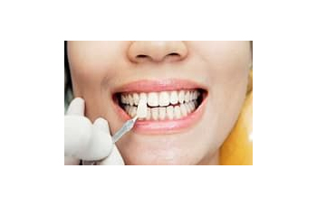 Lumineers Cerinate Hollywood dental veneers Kiev pics photo LumiDent