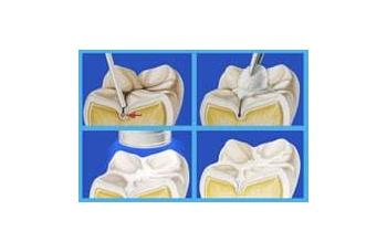 Герметизация фиссур зубов Киев фото Люми-Дент