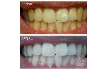 Отбеливание Зубов Киев фото стоматология ЛюмиДент