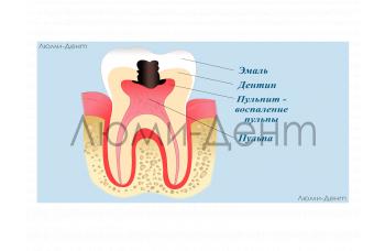 Лікування каналів зубів пульпіту періодонтиту Київ фото Люмі-Дент