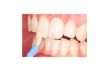 Глибоке фторування зубів Київ ремінералізація фотоЛюміДент