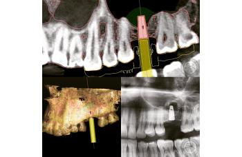 Прицільний ренгенівський знімок зубів фото Люми-Дент