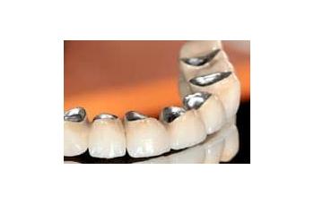 Металлокерамическая коронка на зубы Киев фото ЛюмиДент