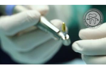 Как ставят имплант зуба Киев фото Люми-Дент