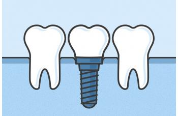 Гарантия на имплантацию импланта зубов Киев фото Люми-Дент
