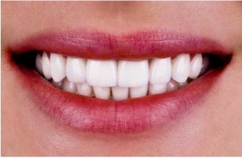 Виниры или художественная реставрация зубов Киев фото Люми-Дент