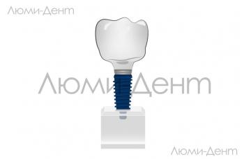 Виды зубных имплантов цены рейтинг клиники ЛюмиДент Киев фото