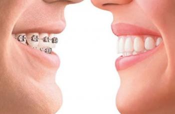 Ортодонт Киев детский стоматолог фото ЛюмиДент