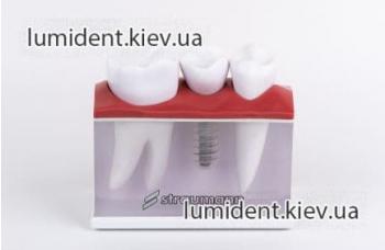 Съемные и несъемные зубные протезы на имплантах Киев фото ЛюмиДент
