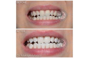 хімічне відбілювання зубів фото ЛюміДент