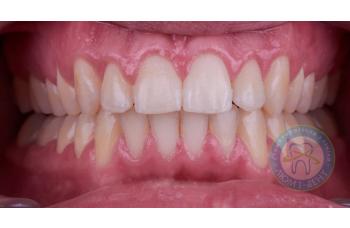 Види правильного і неправильного прикусу зубів