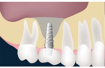 Cинус лифтинг имплантация Киев стоматология фото ЛюмиДент