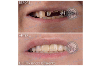 мостовидный протез на зубы фото ЛюмиДент