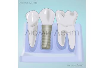 Імплантація зубів за один день Київ фото Люмі-Дент
