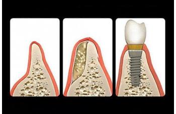 Кісткова пластика PRF на основі мембран фото Люми-Дент