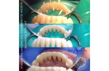 Шинування зубів Київ фото стоматологія ЛюміДент