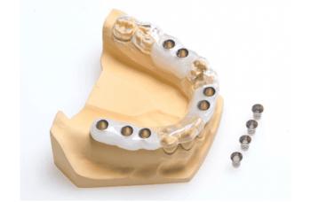 Имплантация зубов видео хирургические шаблоны фото ЛюмиДент