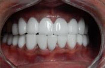 Протезирование зубов Киев виды зубных протезов фото Люми-Дент