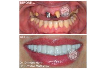 виды имплантации зубов фото ЛюмиДент
