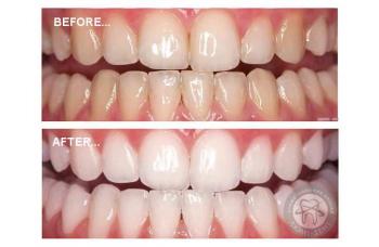 Система Отбеливания зубов Magic Smile Киев цена - ЛюмиДент