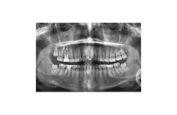 Панорамний знімок зубів Київ ортопантомограма фото Люмі-Дент