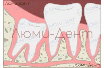 Удаление зуба мудрости Киев вырвать восьмерку фото Люми-Дент