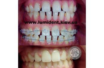 Брекеты на зубы Киев брекет-системы фото ЛюмиДент